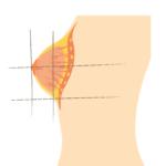 Brust Größen
